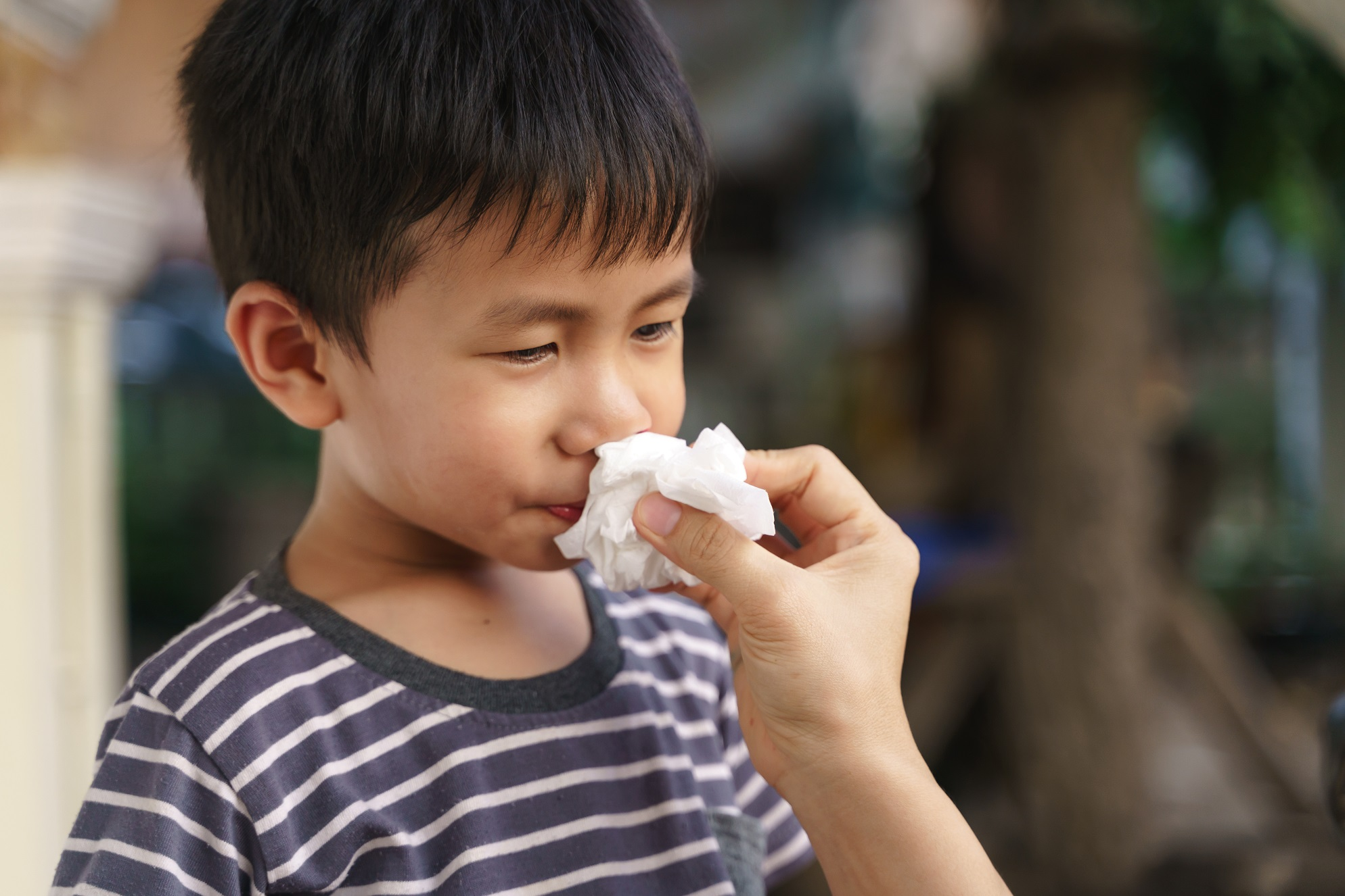 otolaryngologists near you can treat nose bleeds in your children